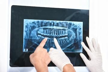 Dentist pointing at digital xrays | Dentist Sarasota FL