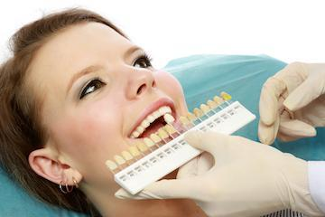 Dentist using shade guide on patient | Dentist Sarasota FL
