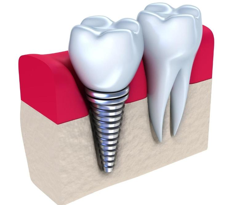 dental implant | sarasota fl implant dentist