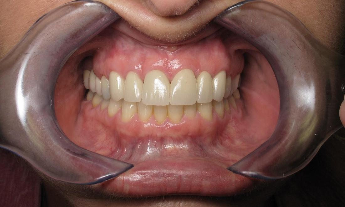 porcelain crown on front tooth image | sarasota fl