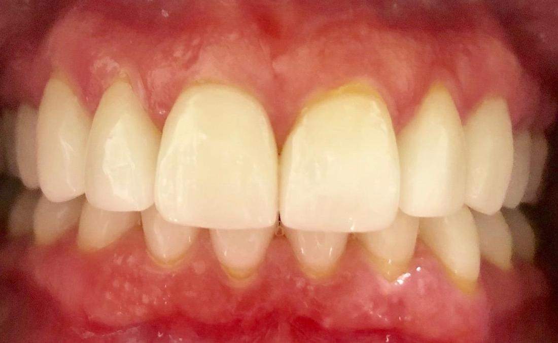 dental veneers after image | sarasota fl