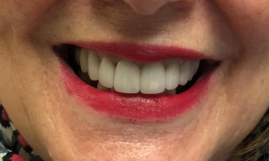 after dental crowns picture | sarasota fl