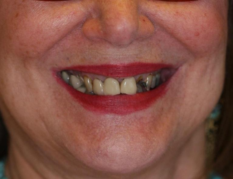 before dental crowns picture | sarasota fl