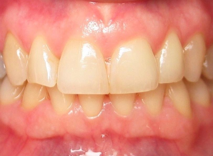 dental veneers before image | sarasota fl