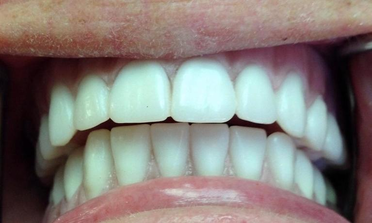 Implant-Retained-Dentures-in-Sarasota-FL-Before-Image